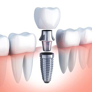 An image of a dental implant with the abutment and custom restoration