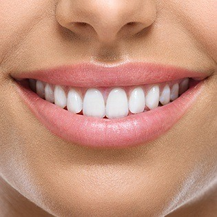smile with gum recontouring