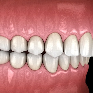 Image of an overbite