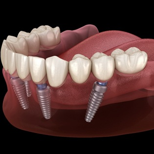 implant-retained dentures