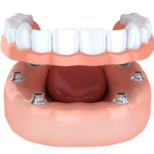 implant-retained dentures six