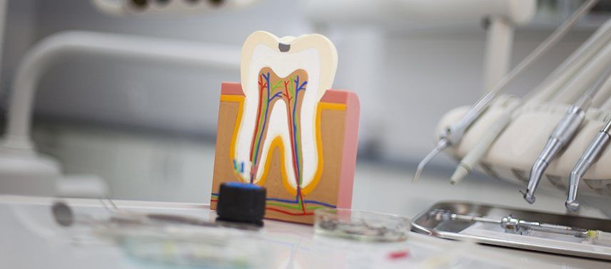 tooth in need of root canal therapy