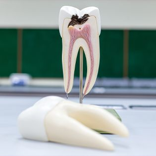 plastic tooth with decay
