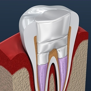 Layers of root canal therapy