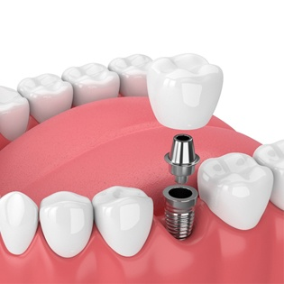 A single tooth implant