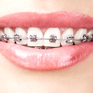 An image of a person's mouth who is exposing the top row of teeth that have metal brackets and wires on them