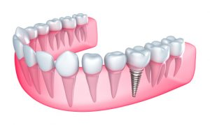For dental implants in Bergenfield, see the dentists at Washington Dental.