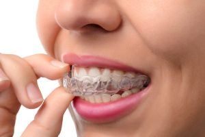 Why should I get Invisalign in Tappan?