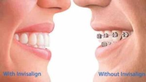 One smile with Invisalign, one with regular braces